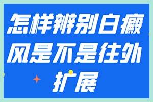 郑州西京指出:怎样较好治疗白斑问题才能降低伤害